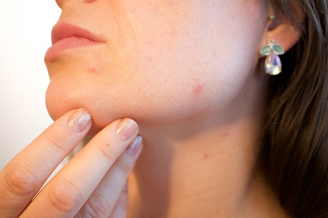 woman touching chin that has acne.